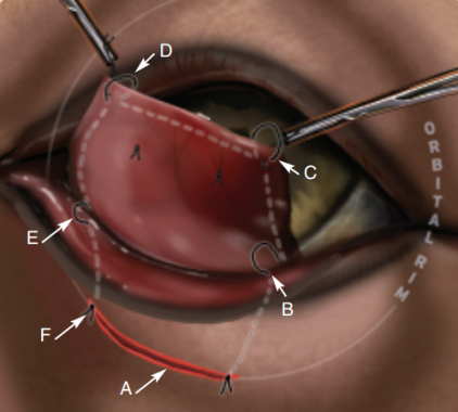 Cherry Eye Disease Surgery